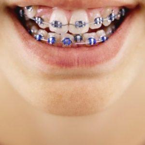 Denti di un bambino con l'apparecchio