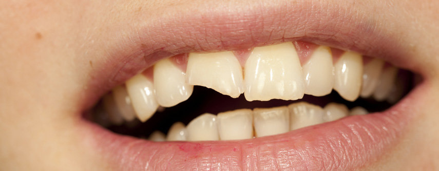 Un dente rotto