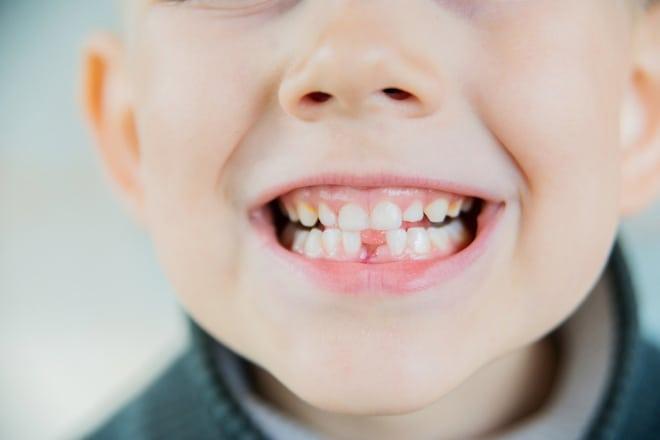 Un bambino con i denti da latte