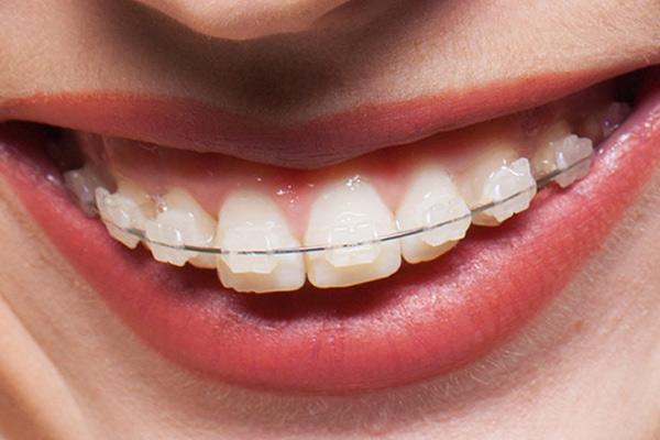 Dental House Kids   Apparecchio ceramica