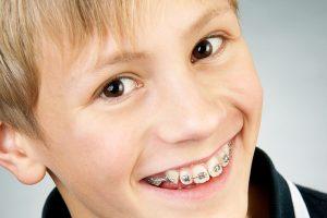 Dental House Kids | Tradizionale
