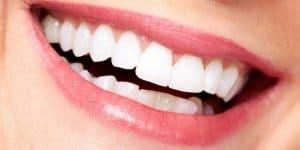 Un sorriso con i denti permanenti