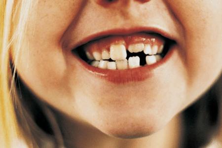 Una bambina a cui sono caduti i denti da latte
