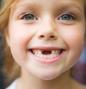 Una bambina senza dentini